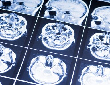 Chłodzenie wyleczy wstrząśnienie mózgu? Nowe ustalenia naukowców