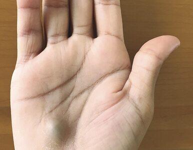 Śmiertelna infekcja po wizycie u dentysty. Tak wyglądała dłoń 27-latka w...