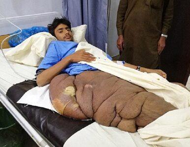 Nastolatek choruje na nowotwór. Guz waży blisko 20 kilogramów i...